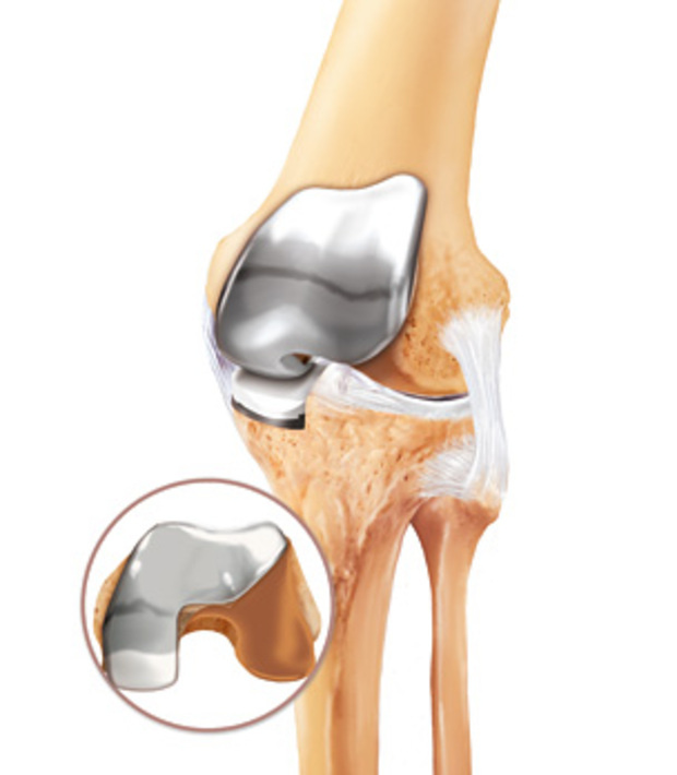 osteosynthesis types This report studies osteosynthesis devices in global market, especially in north america, china, europe, southeast asia, japan and india, with production, revenue.