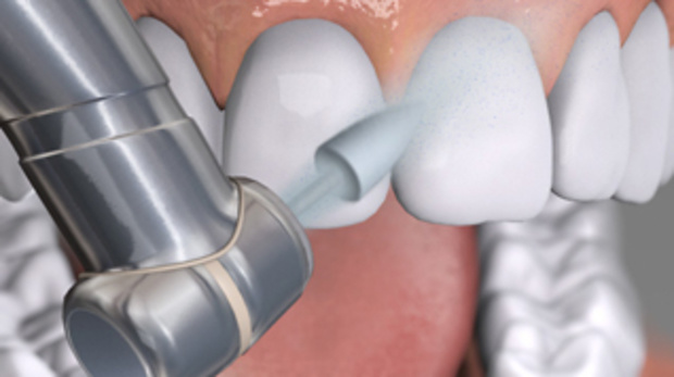 historical survey of dental restorative materials Register to receive a free european markets for dental materials market report synopsis and brochure composite dental filling material, despite being more costly, has become the european dental filling of choice the aesthetically pleasing nature of the material caters to growing trends towards cosmetic dentistry.