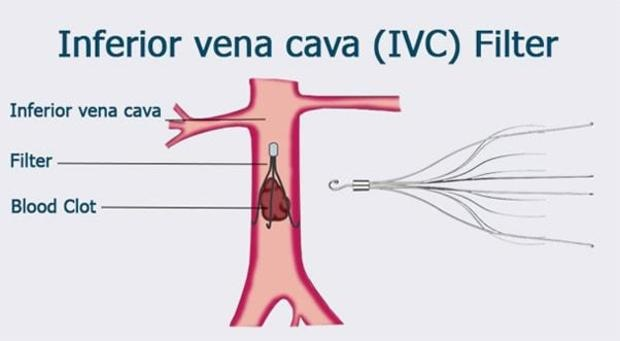 United States Inferior Vena Cava (IVC) Filters Industry Share and ...
