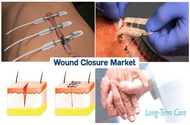 latest trends in wound dressings global The interactive wound dressing is one of the types of the modern wound dressing interactive dressing provides moist environment around the wound surface for effective healing the market for the interactive wound dressing is globally fragmented into its product, applications, and end user.