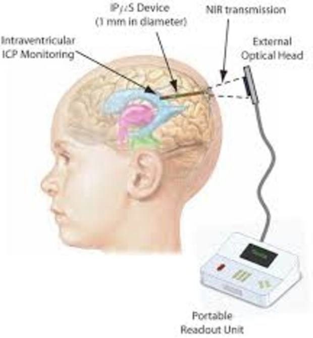 Worldwide Intracranial Pressure (ICP) Monitoring Devices Market and  Forecast Report 2017-2022